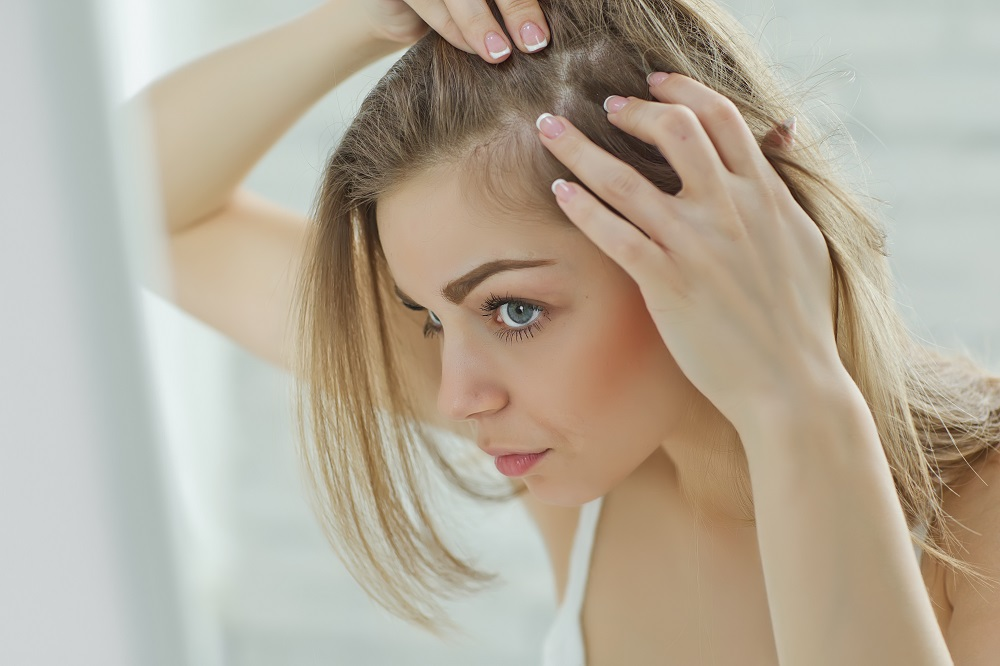 Let Your Hair Speak Up, part 6. Dandruff Remedies
