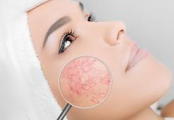 Couperose Skin: Symptoms, Treatments, Beauty Products